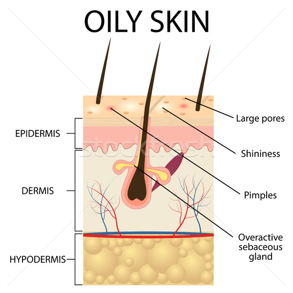 Illustration of The layers of oily skin Stock photo © Neokryuger