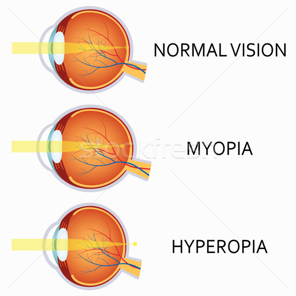 Optical human eye defects. Myopia and hyperopia. Stock photo © Neokryuger