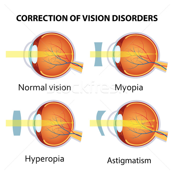 Correction of various eye vision disorder. Stock photo © Neokryuger