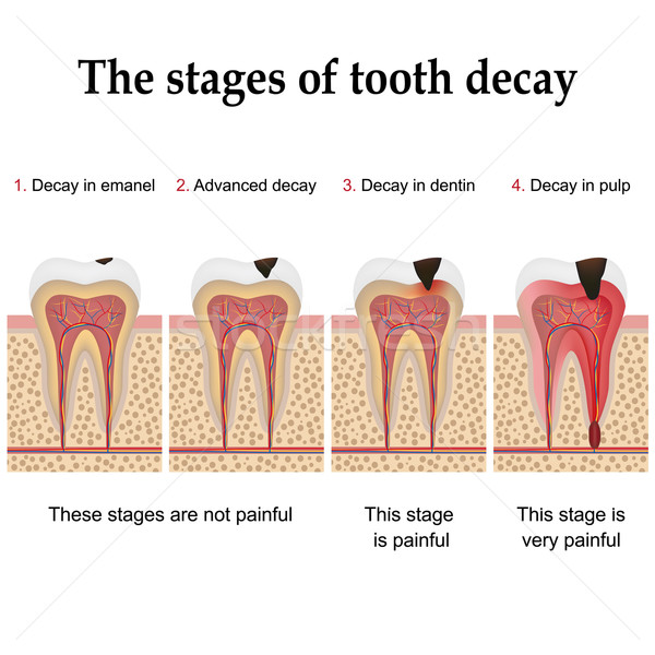 Tooth decay formation Stock photo © Neokryuger