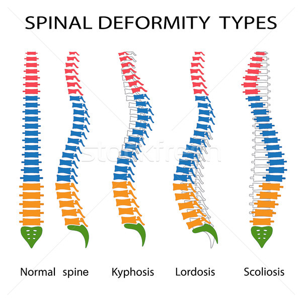 Spinal deformity types. Stock photo © Neokryuger