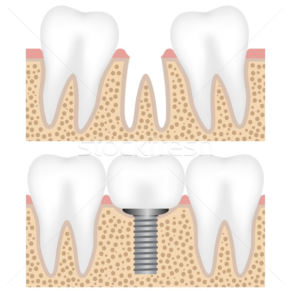 Dental implant with crown Stock photo © Neokryuger