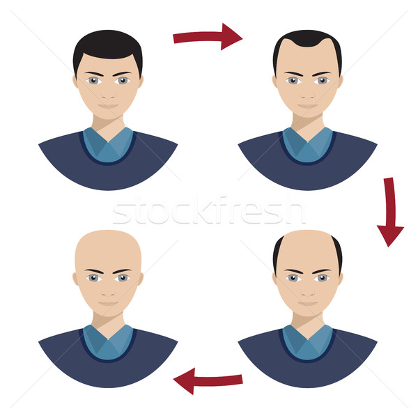 Four stages of hair loss for men. Stock photo © Neokryuger