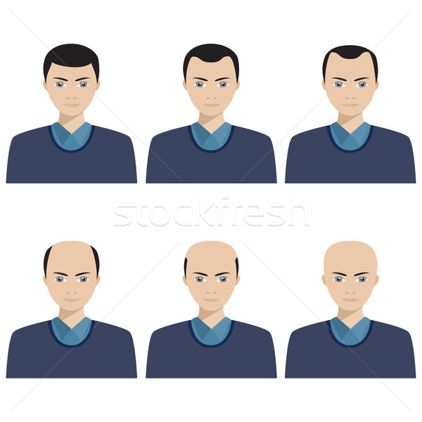 Hair loss stages and types of baldness. Stock photo © Neokryuger
