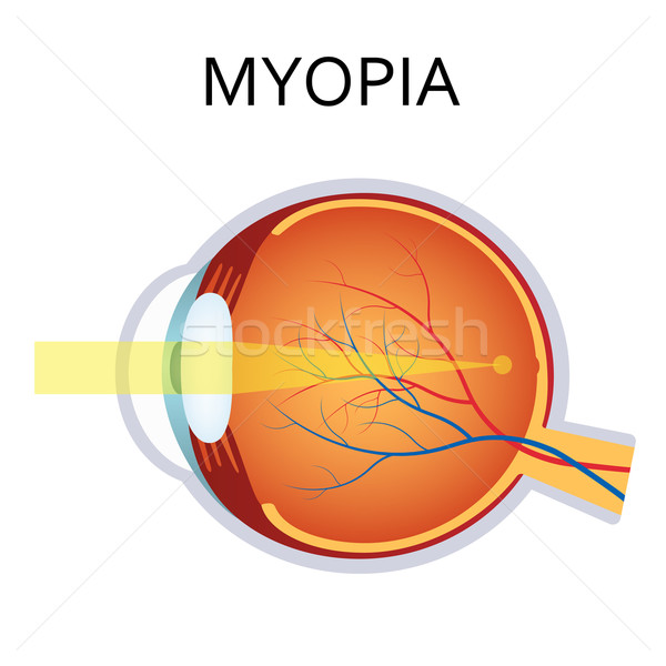 Myopia. Myopia is being short sighted. Stock photo © Neokryuger