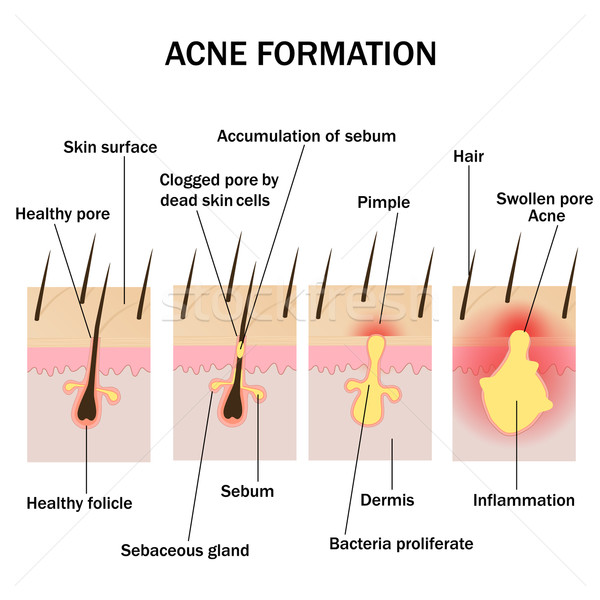 Acne Stock Vectors Illustrations And Cliparts Stockfresh