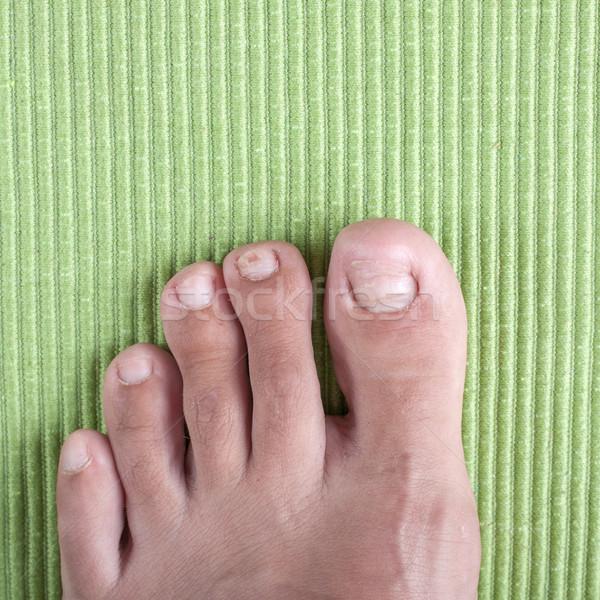 Dedo do pé prego infectado doença ferida Foto stock © nessokv