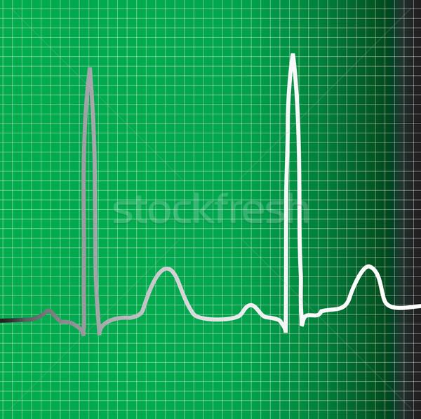 Vert suivre battement de coeur informations médecin Photo stock © nicemonkey