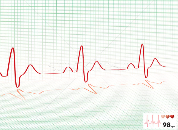 heart beat green grid Stock photo © nicemonkey