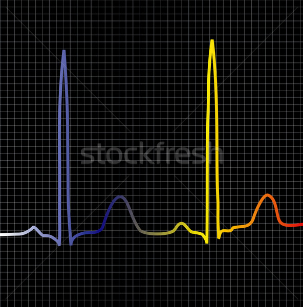 black ecg Stock photo © nicemonkey