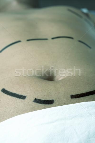 Férfi plasztikai sebészet zsírleszívás közelkép has fiatal Stock fotó © nito