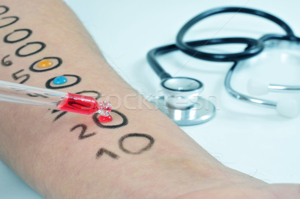 Huid allergie test arm jonge man Stockfoto © nito