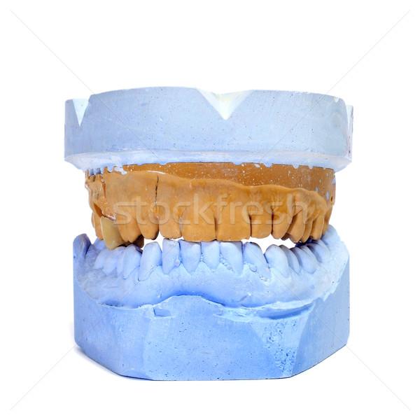 Dental muffa bianco blu bocca pietra Foto d'archivio © nito