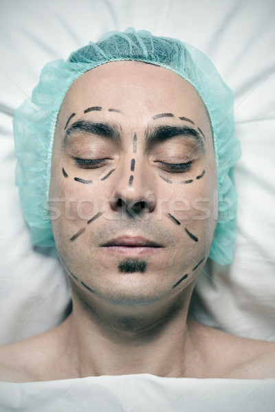 man about to have a plastic surgery Stock photo © nito