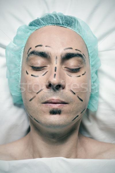 Uomo chirurgia plastica shot testa giovani Foto d'archivio © nito