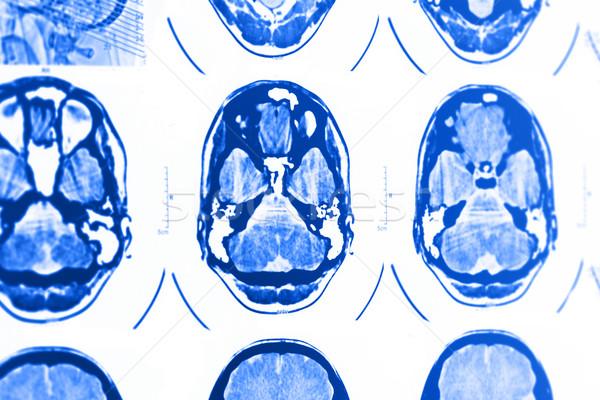 Mri schedel foto medische film technologie Stockfoto © Nneirda