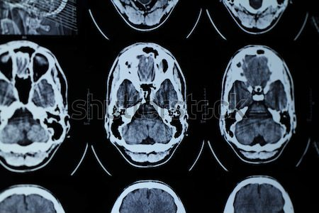 CT and MRI of the skull Stock photo © Nneirda