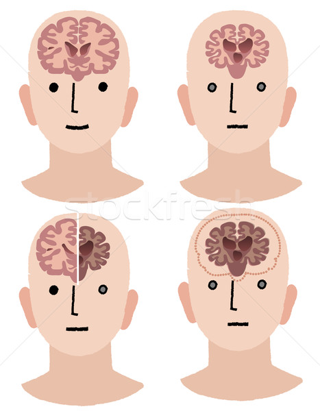Brains of Dementia and Healthy man Stock photo © norwayblue