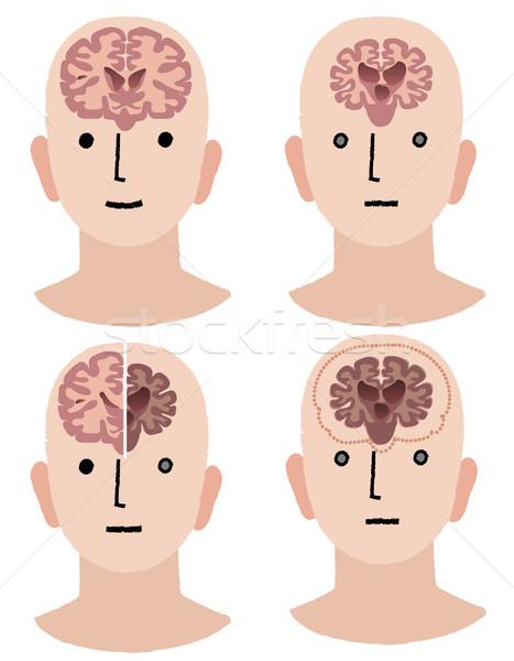 Elmebaj egészséges férfi Alzheimer-kór beteg egészség Stock fotó © norwayblue