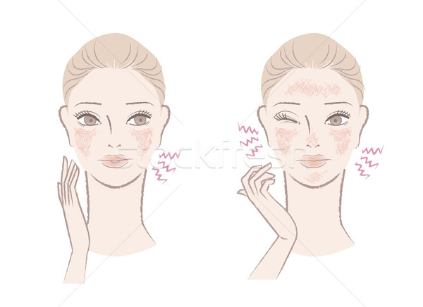 Beautiful woman annoyed with ruddy, sensitive skin Stock photo © norwayblue