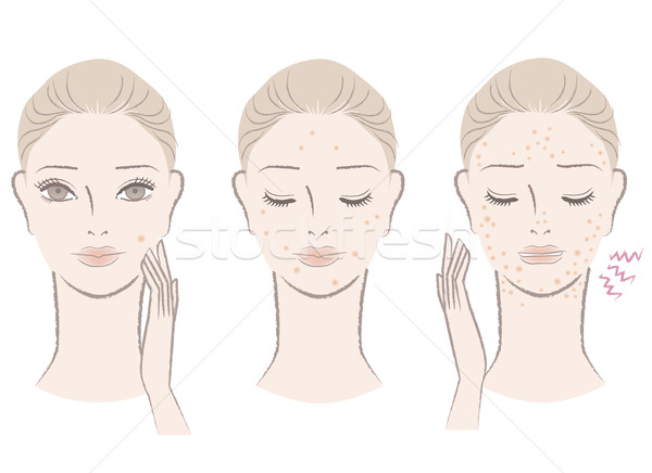 Beautiful woman with annoying pimples, Skin trouble Stock photo © norwayblue