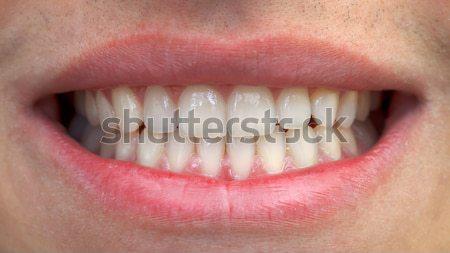 Bocca denti primo piano uomo felice Foto d'archivio © ocskaymark