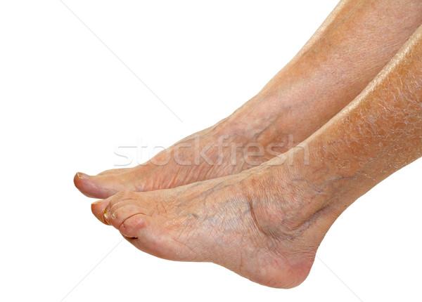 Elderly feet Stock photo © ocskaymark