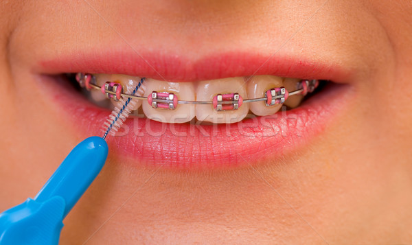 Interdental brushing Stock photo © ocskaymark