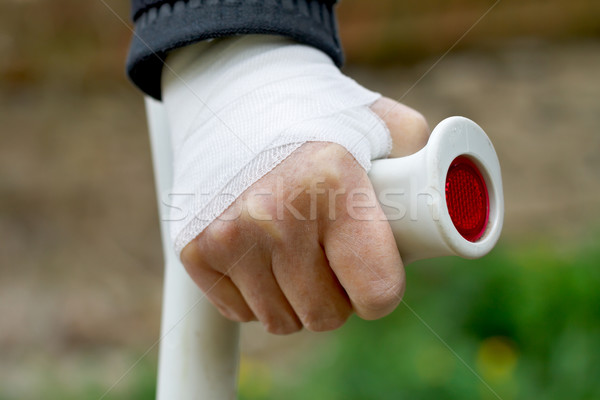 Hand sprain Stock photo © ocskaymark