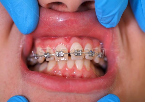 Dentales tirantes clínica cara metal Foto stock © ocskaymark