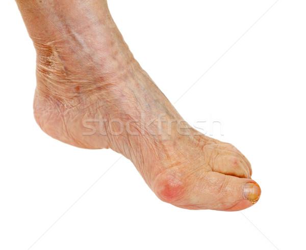 Ouderen voeten foto geïsoleerd medische achtergrond Stockfoto © ocskaymark