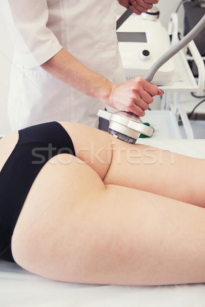 Foto stock: Corpo · tratamento · mulher · excesso · de · peso