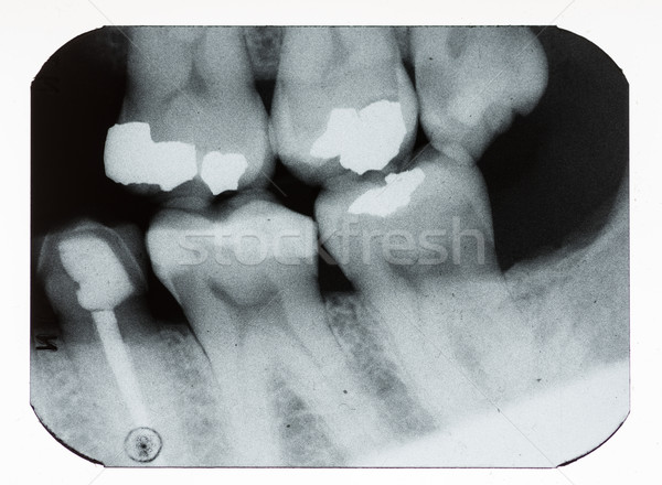 dental xray Stock photo © pancaketom