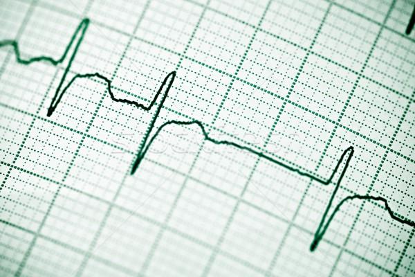 Zdjęcia stock: Elektrokardiogram · papieru · formularza · serca · ciało