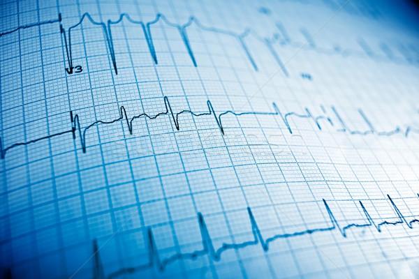 Elektrocardiogram papier vorm medische hart Stockfoto © pedrosala