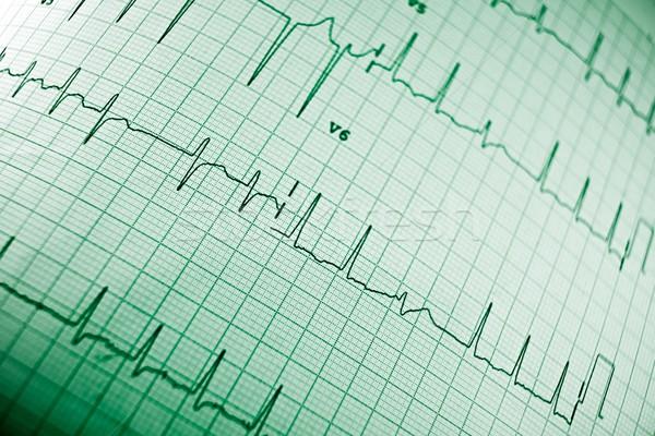 Elektrokardiogram közelkép papír űrlap szív test Stock fotó © pedrosala