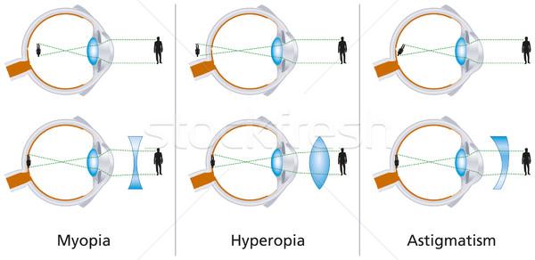örnek üç düzeltmek lensler gözlük Stok fotoğraf © PeterHermesFurian