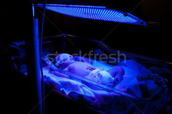 Baby with Phototherapy Stock photo © phakimata