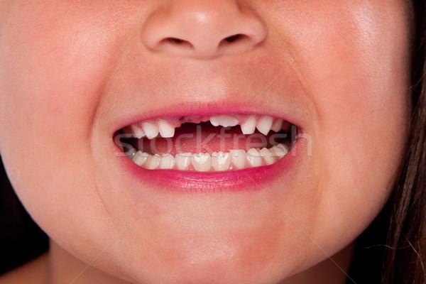 Stock foto: Fehlt · Zähne · Mund · glücklich · öffnen · Milch