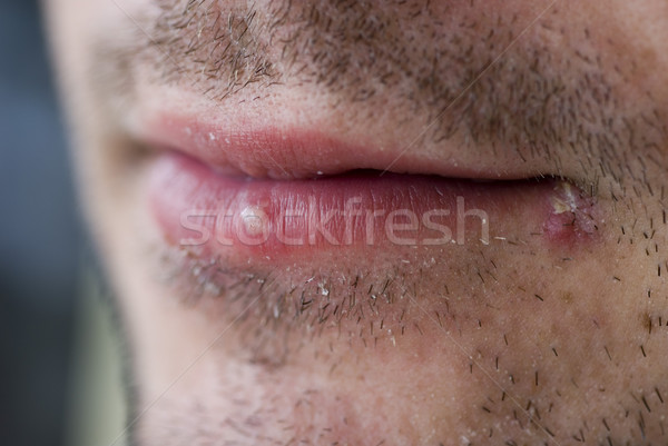 Cold sores (herpes labialis) Stock photo © photohome