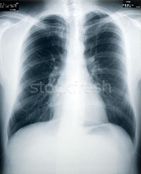 Tuberculosis Screening Stock photo © photohome