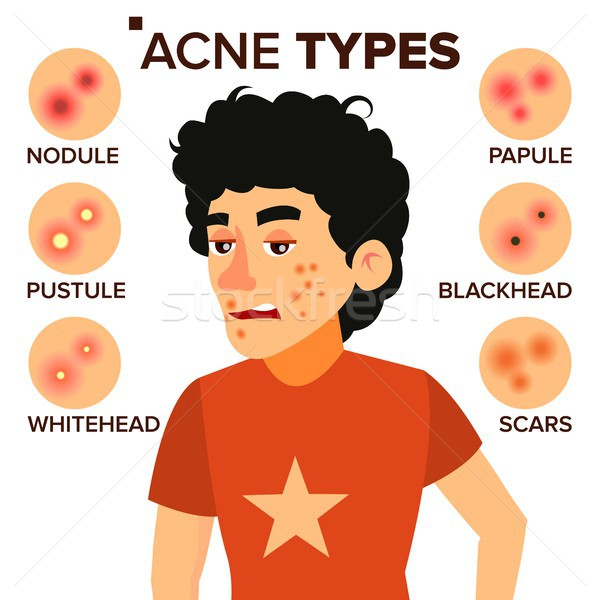 Acne Types Vector. Boy With Acne. Pimples, Wrinkles, Dry Skin, Blackheads. Isolated Flat Cartoon Cha Stock photo © pikepicture