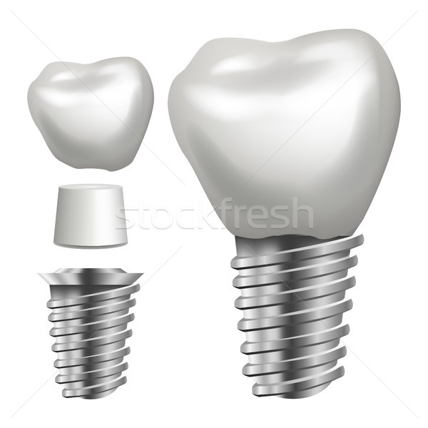 Tandheelkundige implantaat vector zijaanzicht grafisch ontwerp element Stockfoto © pikepicture