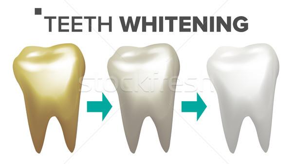 Fogfehérítés vektor fogak fog fogászati egészségügy Stock fotó © pikepicture