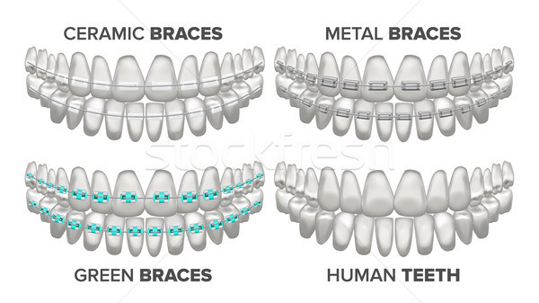 Braces Set Vector. Different Types. Human Jaw. Metal, Ceramic, Child. 3D Realistic Isolated Illustra Stock photo © pikepicture