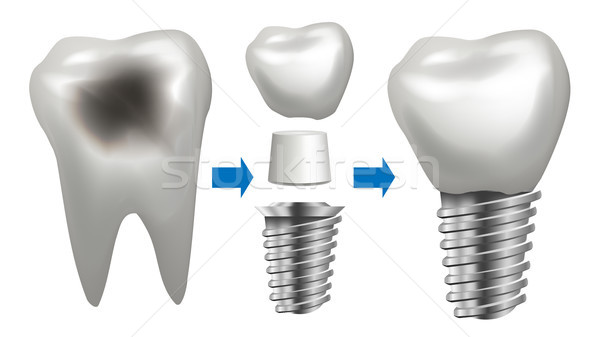 Dental Implant Vector. Tooth With Caries. Health Tooth Implant. Dental Clinic Stomatology Flyer. Rea Stock photo © pikepicture