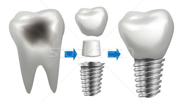 Dentales implante vector diente salud clínica Foto stock © pikepicture