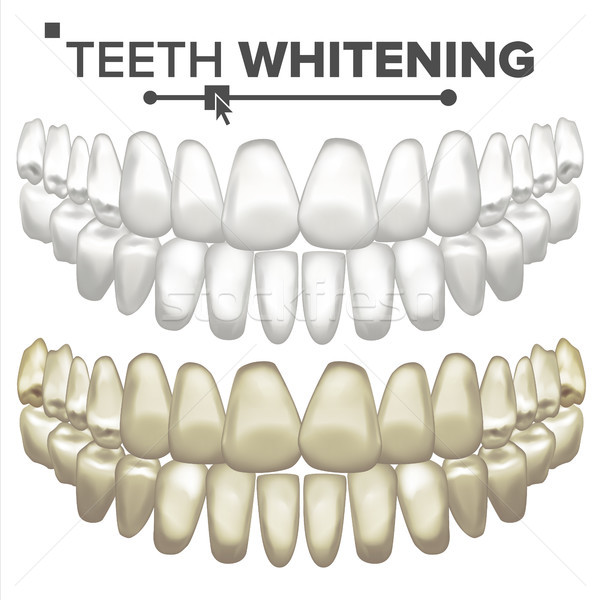 Teeth Whitening Vector. Dental Care. Cleaning Professional Teeth. Realistic Isolated Illustration Stock photo © pikepicture