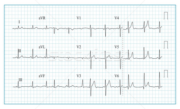 Hart kardiogram grafiek golf vorm Stockfoto © pikepicture