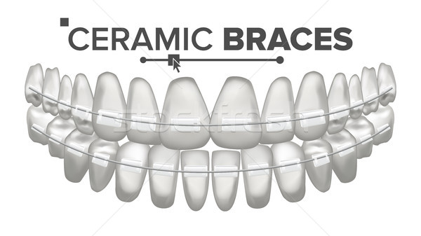 Ceramic Braces Vector. Human Jaw. Dentist, Orthodontist Poster Element. 3D Realistic Isolated Illust Stock photo © pikepicture